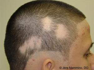 Source: http://www.aocd.org/resource/resmgr/ddb_high/alopecia_areata_1_high.jpg